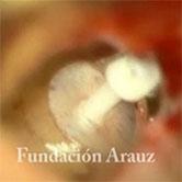 5050 Insercion protesis campo mercandino
